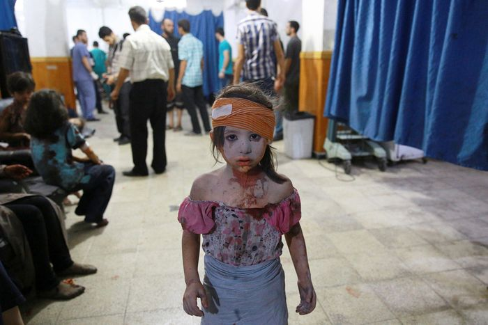 A wounded Syrian girl stands in a makeshift hospital in the rebel-held area of Douma, east of Syria's capital of Damascus, following shelling and air raids by Syrian government forces on August 22, 2015. At least 20 civilians were killed, and another 200 wounded or trapped in Douma, a monitoring group said, just six days after regime airstrikes killed more than 100 people and sparked international condemnation of one of the bloodiest government attacks in Syria's war. (Abd Doumany / AFP / Getty)